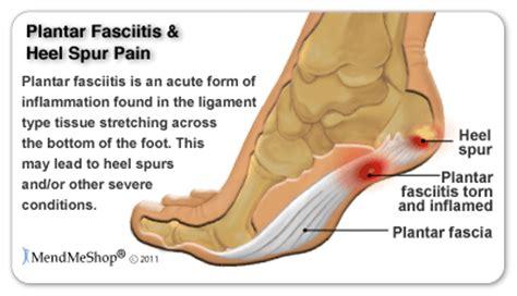 Planters Foot Symptoms by Mendmeshop Symptoms Of Plantar Fasciitis