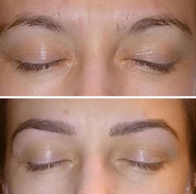 rogaine for women before and after pictures image gallery minoxidil eyebrows