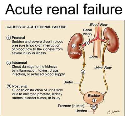 renal failure acute renal failure
