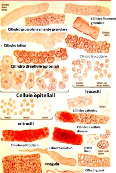 sedimenti nelle urine cilindruria