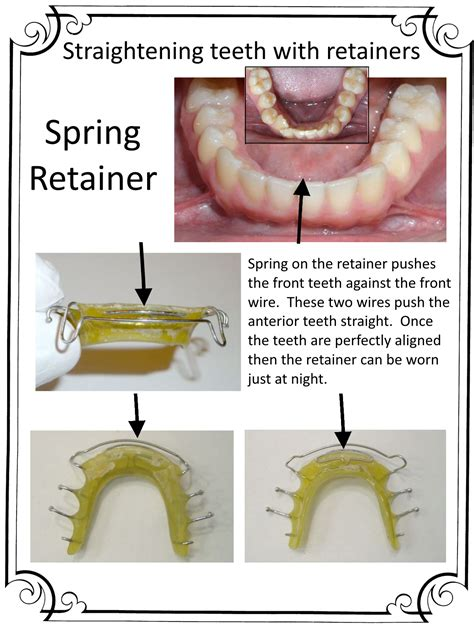 How To Straighten Teeth At Home by District Orthodontics Can Straighten Teeth With A