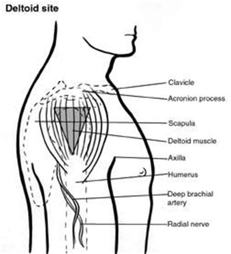 overview of intramuscular injections   alfa