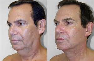 How Much Does A Face And Neck Lift Cost by Your Ultimate Skin Tightening Primer Everything So Far