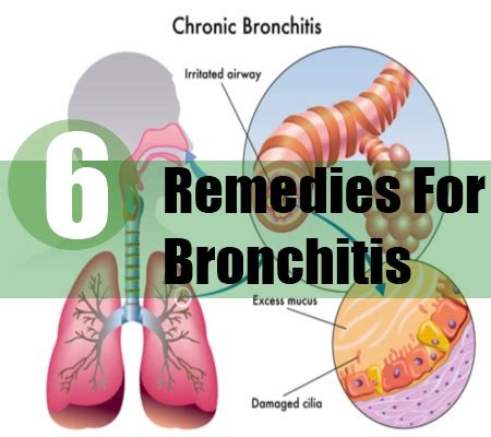 6 home remedies for bronchitis treatments cure
