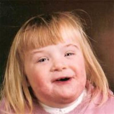 Down Syndrome Girl Meme - image 164965 retard girl know your meme