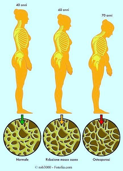 alimentazione per osteoporosi sintomi dell osteoporosi cura farmaci rimedi