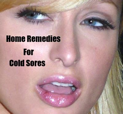 best herpes treatment 17 best images about my cold sores herpes treatment on