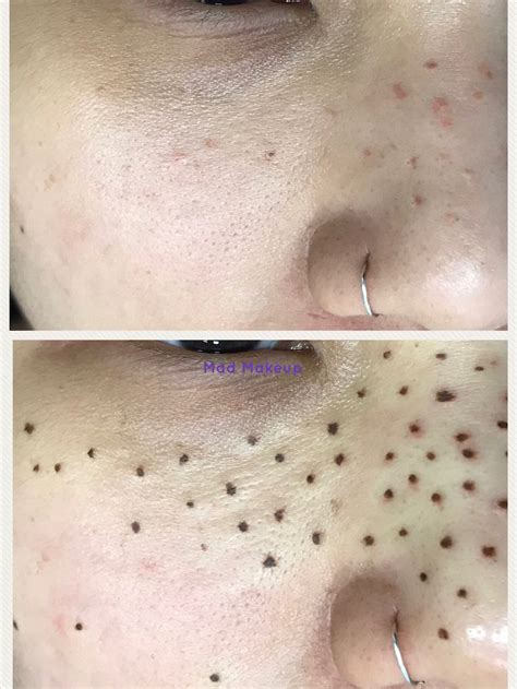 tattoo removal affect freckles permanent cosmetic makeup san antonio texas mad