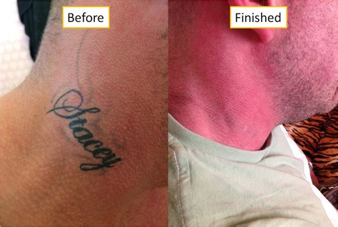 tattoo removal newcastle refined ipl and laser treatments