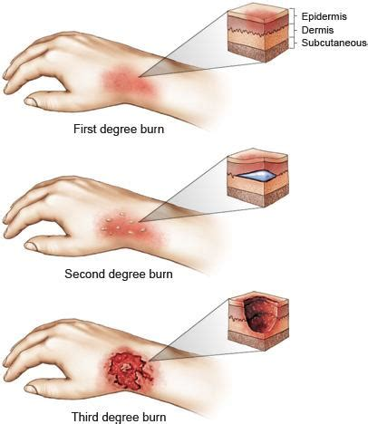 how to heal rug burn fast why appropriate wound dressing is essential for burn wounds