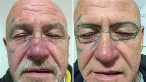 laser tattoo removal success stories drunken stag do wakes up with pair of bans