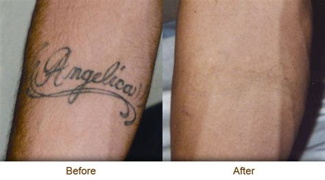 surgical tattoo removal before and after removal march 2013