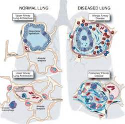 Pulmonary fibrosis related keywords amp suggestions pulmonary fibrosis