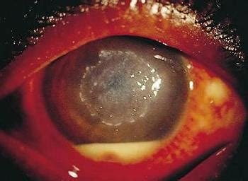corneal ulcer: causes, treatment and prevention