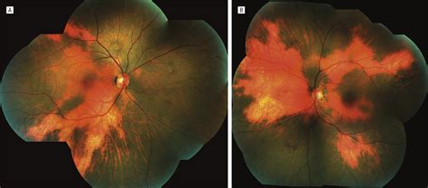 fundus changes hypopigmentary fundus changes seen with cutaneous vitiligo