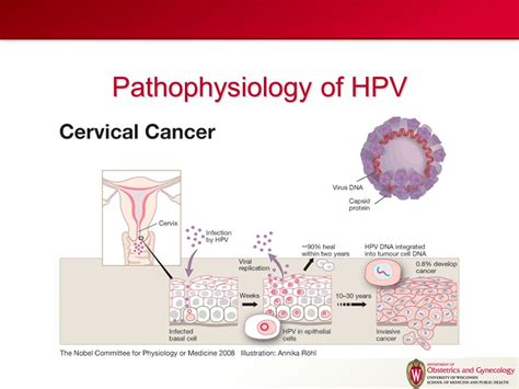 cervical cancer diagram diagram of cervix cancer image collections how to guide