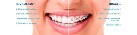 Invisalign Sterling Potomac Falls Ashburn Va Top Nova Orthodontics Invisalign Photo Template