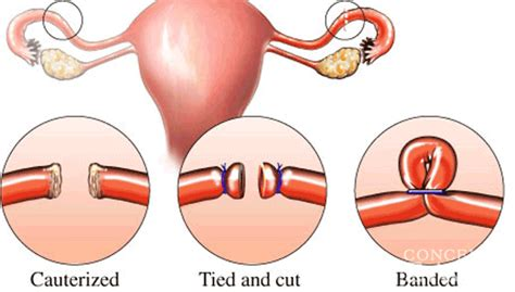 chances of getting pregnant after tubal ligation during c section home team one tubers the fertile chick