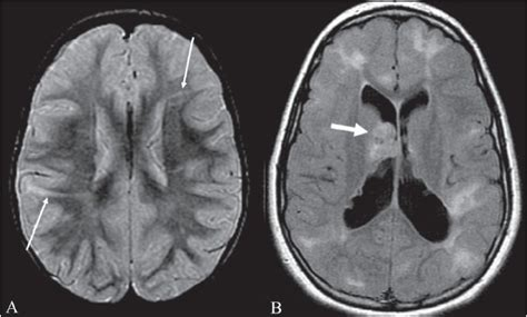 tigroid pattern white matter technology and techniques in radiology radial bands sign