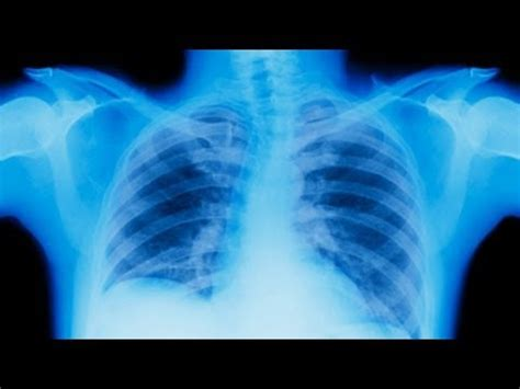 Oncology Cancer 4 In 1 C Stages Of Lung Cancer