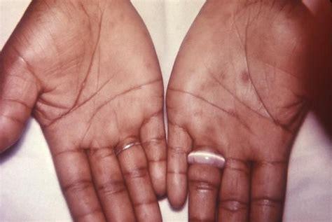 syphilis rash on hands alien skin exposure 7 serial