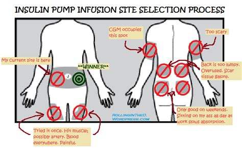 Insulin Site Rotation Printable Diagram Insulin Rotation Sites Illustration Elsavadorla Insulin Site Rotation Template