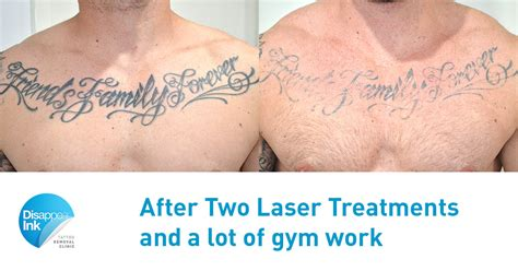 tattoo removal chest friends family forever 2nd treatment disappear ink