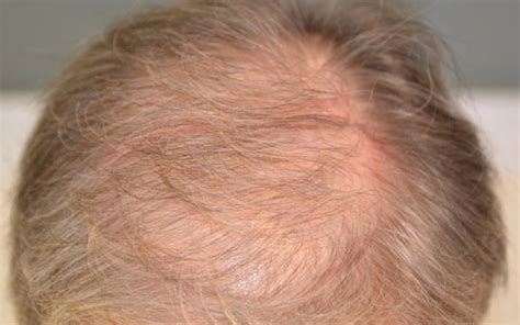 female pattern hair loss uk female pattern baldness l female hair loss l london