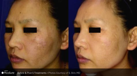 picosure pico toning clean slate laser beauty amp esthetics