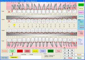 periodontal chart template ocs dental software