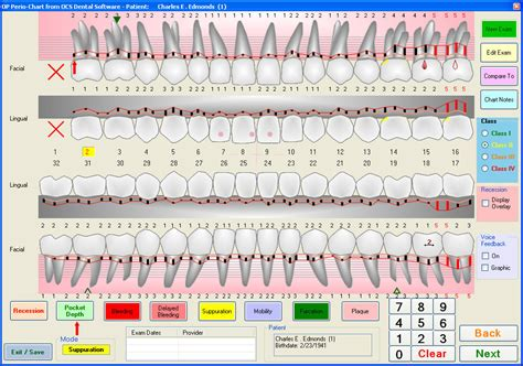 ocs dental software