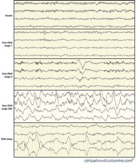 eeg pattern recognition quiz 17 best images about medical eeg tests on pinterest