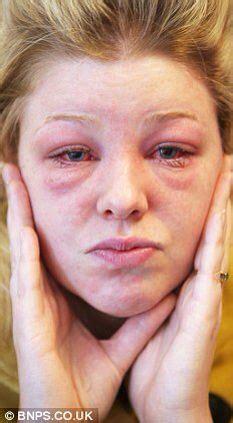 has swollen eye swollen swollen eye reference