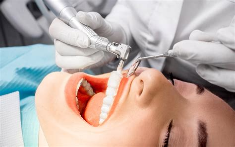 dental cleaning dental cleaning jackson ms general dental services