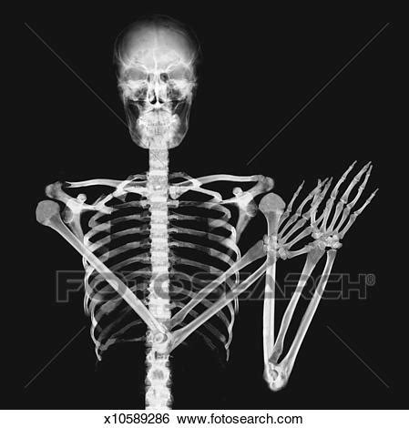 stock illustration of x ray image of a person clapping