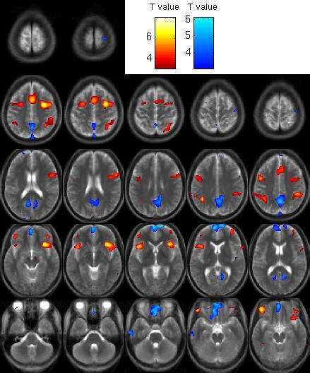 pattern classification fmri quantifying the unconscious new methods in fmri pattern