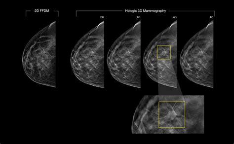 mammographie ab wann tomosynthese 3d mammographie mammadiagnostik marburg