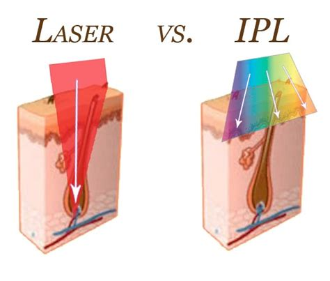 light therapy hair removal laser vs ipl hair removal treatment dubai uae