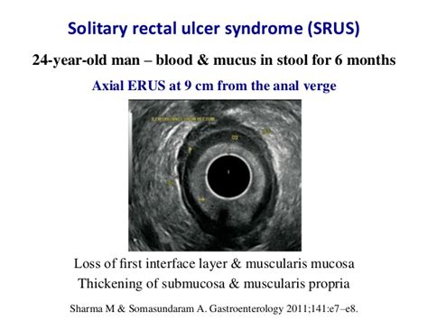 Ulcer Blood In Stool by Endorectal Ultrasound In Rectal Diseases