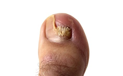 Light Skin Discoloration Around Mouth Skin And Nail Yeast Infection Symptoms