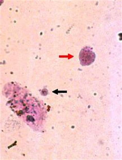 diapo3et4f_transitional cells