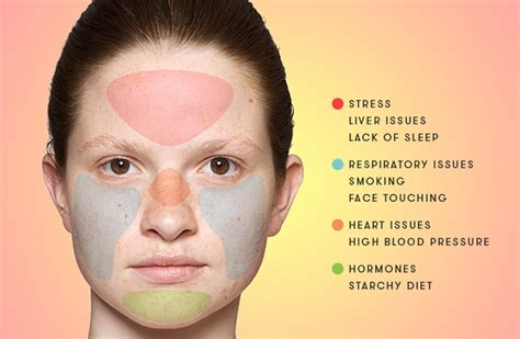 pattern words for acne acne face mapping for identifying pimples with causes and