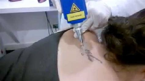what s tattoo removal look like see 2 minutes of footage