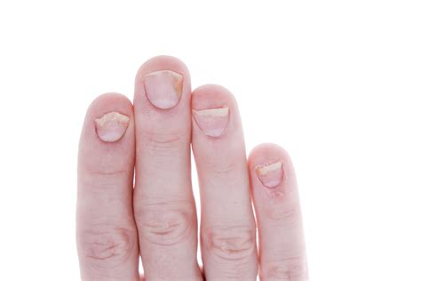 Finger Nails by Fingernails Part 1 What Your Fingernails Say About You