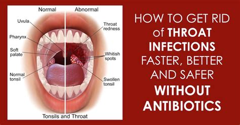 home remedies for strep throat infection that are safe