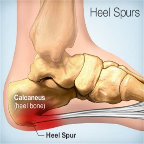 home remedies for heel spurs best home remedies for heel treatments to