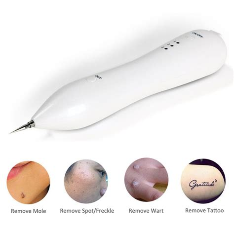 what is the best laser tattoo removal machine best 25 laser mole removal ideas on
