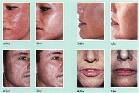 Paket Chemical Soft Peel Acne chemical peels the best skin peels advanced