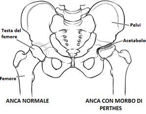 formicolio alla testa lato sinistro tensioni al collo la causa potrebbe essere il 1linza ru