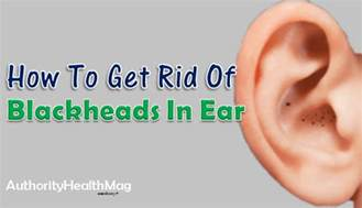 home remedies to get rid of blackheads how to get rid of blackheads in ear home remedies
